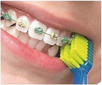 แปรงสีฟันสำหรับคนจัดฟัน CS 5460 Ortho ด้ามสีฟ้า