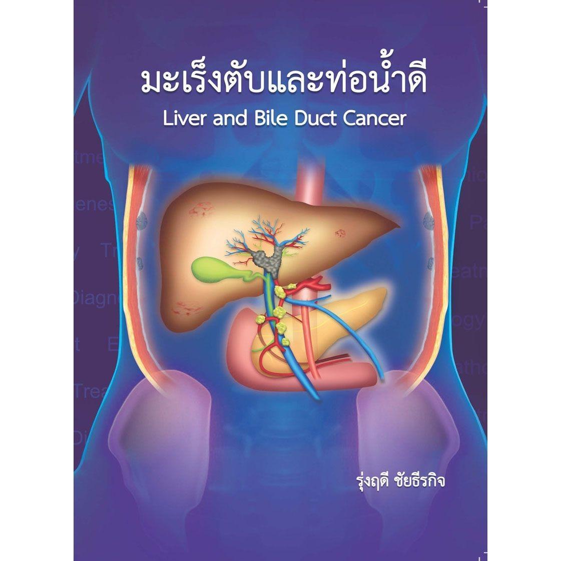 มะเร็งตับและท่อน้ำดี